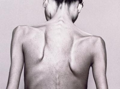 Magersucht Folgen Für Den Körper